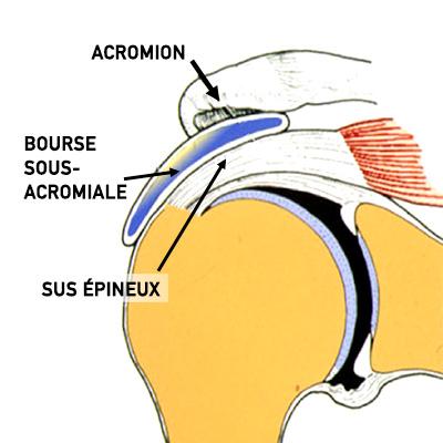tendinopathie et conflit sous acromial gregory navez